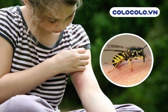 Cần đặc biệt lưu ý các nguyên nhân gây dị ứng từ côn trùng