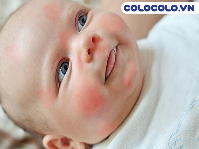 Viêm da dị ứng - Bệnh thường gặp ở trẻ em